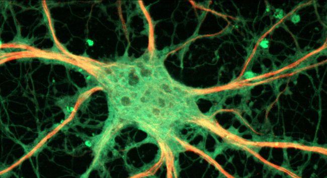 rat hippocampal neuron